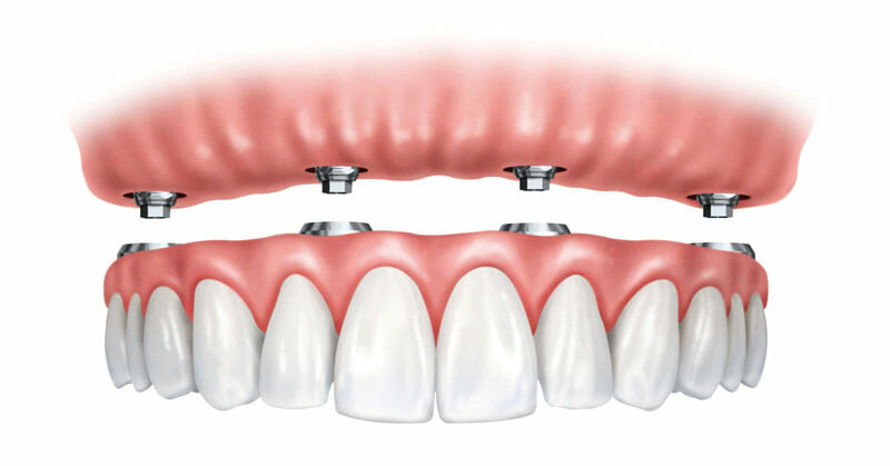 full-mouth-dental-implants-4